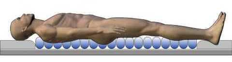antidecubitus matrac